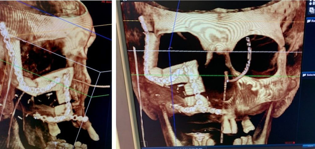 Fig. 4 Intraoperative CT after the reconstructive surgery.